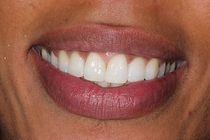 After Invisalign Treatment & Whitening