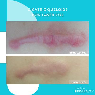 Resultado de cicatriz Queloideo.png