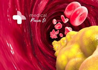 Triglicéridos: Recomendaciones para tener un nivel adecuado