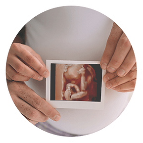 pregnancy-package-5e7225db57450.png