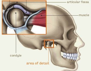 TMJD - Your jaw ache explained