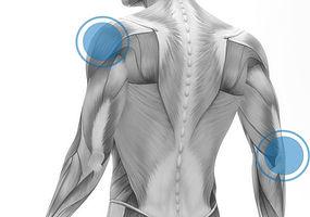 Pain relief Hertfordshire back shoulder