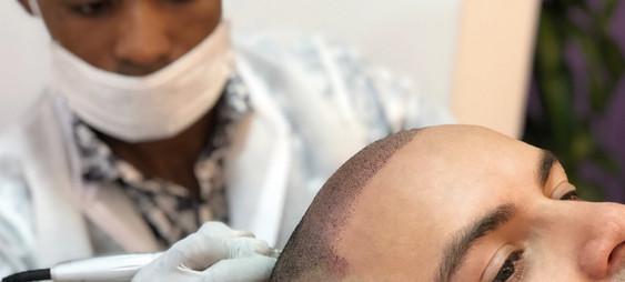 Micropigmentación capilar o tricopigmentación - Facialtec (1).jpg