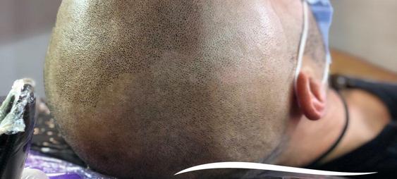 Micropigmentación capilar o tricopigmentación - Facialtec (2).png