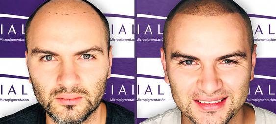 Micropigmentación capilar o tricopigmentación - Facialtec (1).png