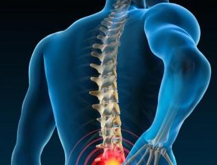 Estudo: Quiropraxia gera uma economia de 40% em gastos com dor lombar