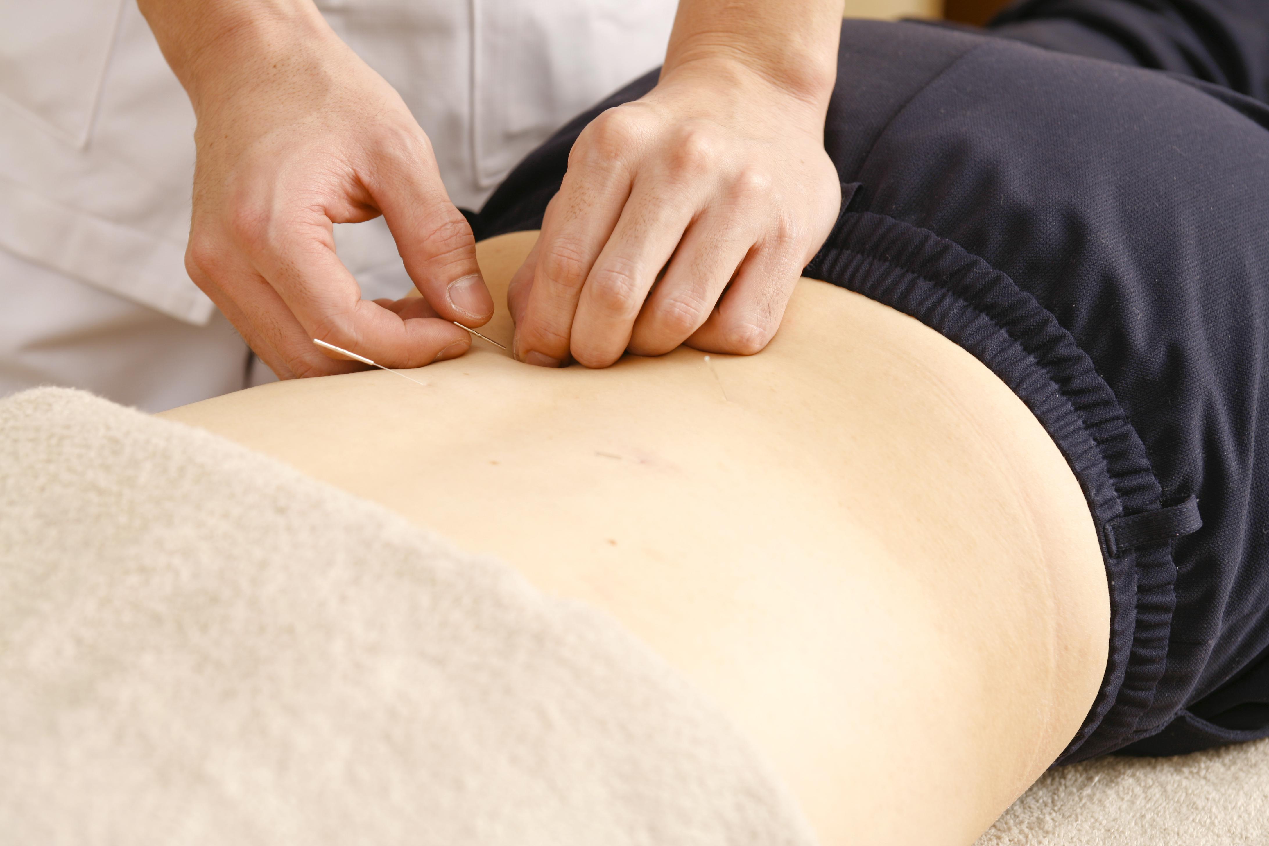 一般治療(腰痛)