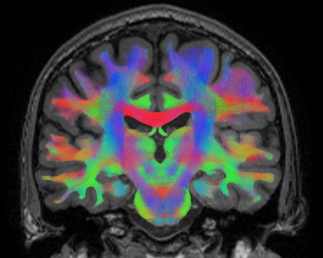 Nörogörüntüleme