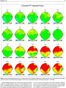 Psikiyatri' de beyin haritalama- Brain mapping