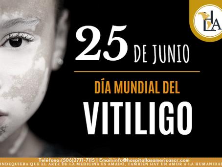25 de junio Día Mundial del Vitiligo.