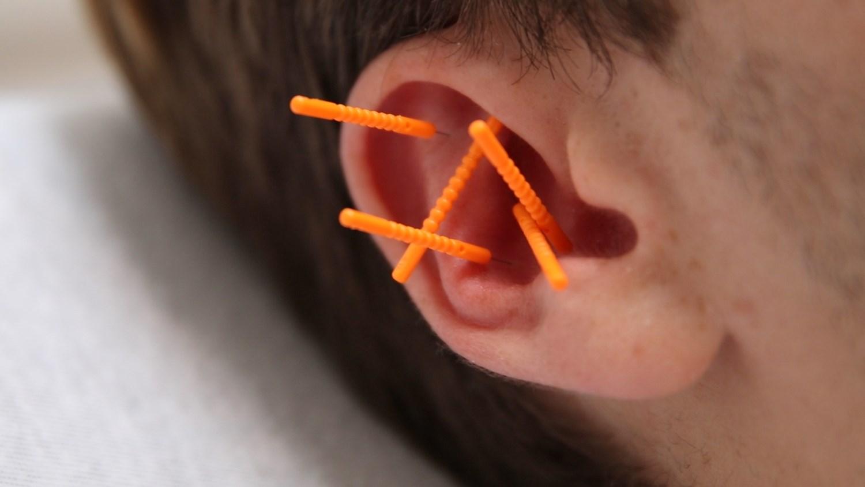 NADA øreakupunktur
