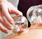cupping-and-chronic-pain-1530049333.jpg