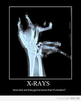 Are you sure I don't need an MRI scan?