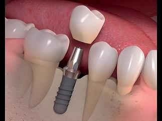 Implant crown.jpg