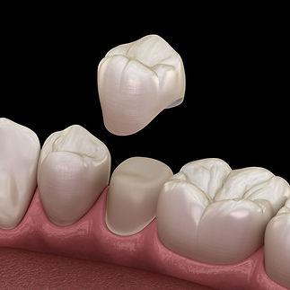 original_dental_crowns_hero_mobile.jpg