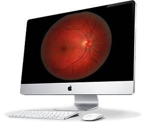 scan retinien