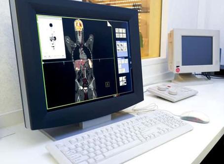 PET scan kan effect van nieuwe kankerbehandeling voorspellen
