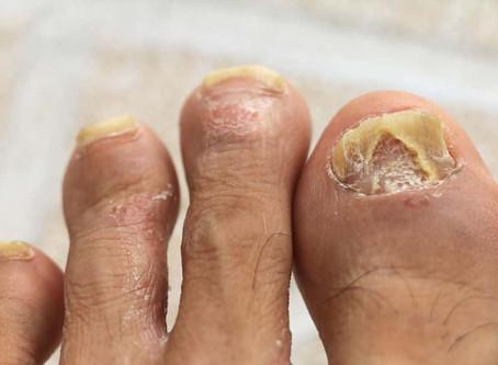 Co-existentie van schimmelinfecties bij psoriasis. Correlatie met ernst van psoriatische nagels!
