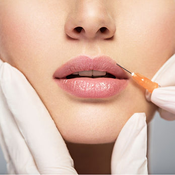 LifeMed Clinic offers Dermal Fillers for lips, cheeks, nose, fine lines
