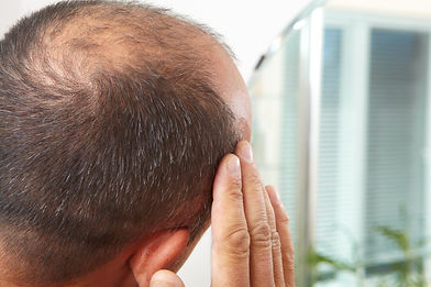 LifeMed Clinic offers PRP or hair loss and hair thinning