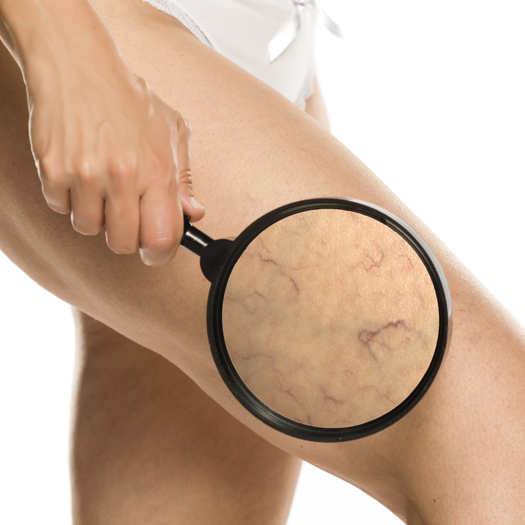 Spider Veins-Broken Capillaries
