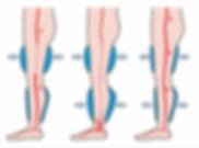 КПАПК, ишемия нижних конечностей, наружная котрпульсация, ХОЗАНК, атеросклероз нижних конечностей, Кардиопульсар
