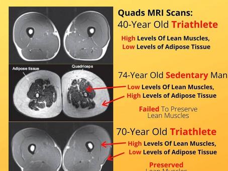 La fonte musculaire, pas une fatalité du vieillissement !
