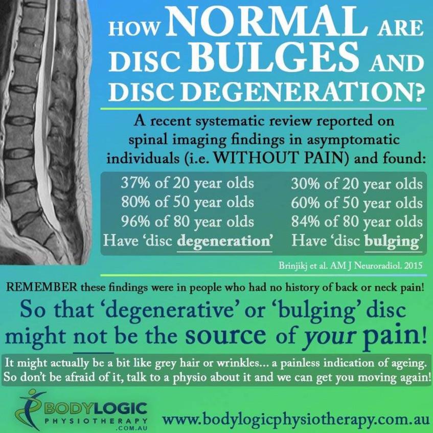 Pas de relation entre la douleur et les dégénérescences discales !