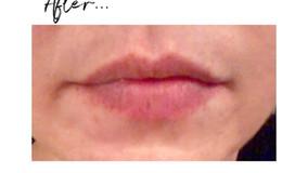 *My Secret to Fuller Lips*