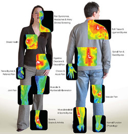 Thermography for men and women