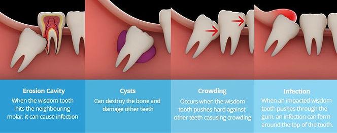 Impacted-Wisdom-Tooth-Types.jpg