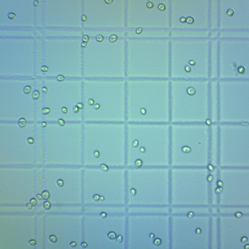 beer yeast under a microscope