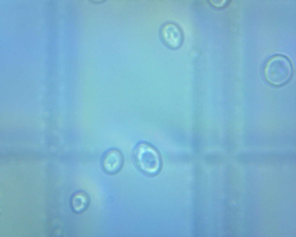 yeast cells under a microscope
