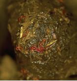 Common Winter Ailments: Intestinal parasites