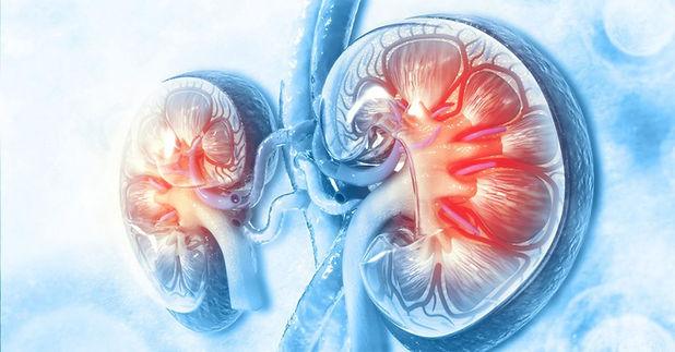 Chronic Kidney Treatment