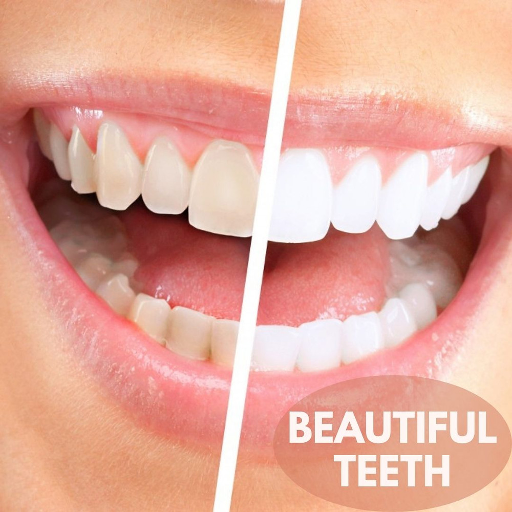 How to restore teeth naturally