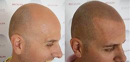 mens scalp.jpg