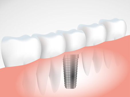 How are dental implants fitted?