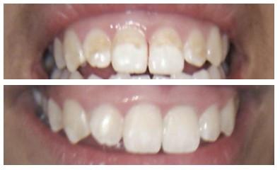 Teeth Stain - Whitening Treatment