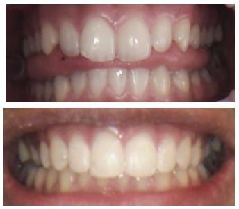 Cosmetic Orthodontics