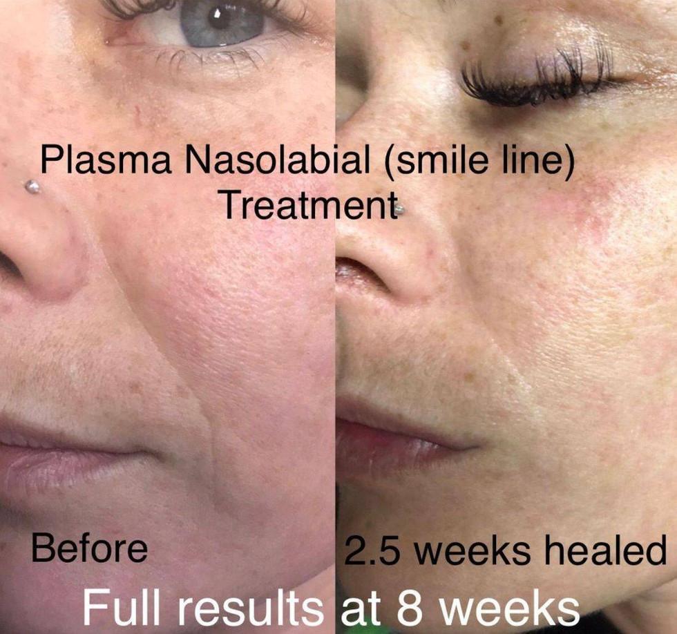 Nasolabial Folds Treatment
