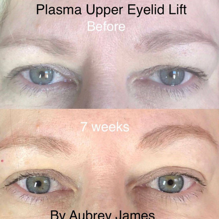 Hooded Eyelids Treatment