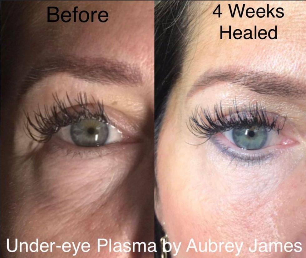Under-Eye Treatment