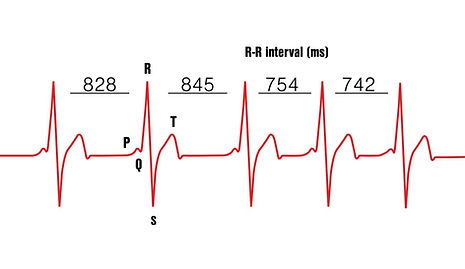 heart-rate-variability-HRV-RMSSD-Firstbe