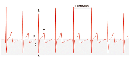 HRV b.a.s.e. – Stärker am See