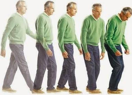 Alteraciones gastrointestinales y Enfermedad de Parkinson