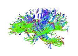 tractografia cerebra
