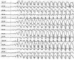 Epilepsia, alteraciones conductuales y aprendizaje