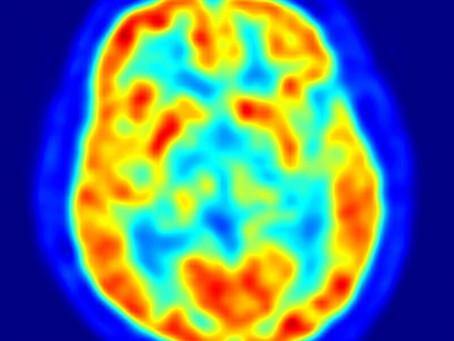 Diagnóstico Alzheimer: RMN espectroscopia y SPECT cerebral