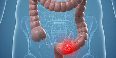 cancérologie_digestive.jpg